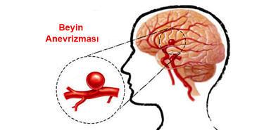beyinde anevrizma görseli