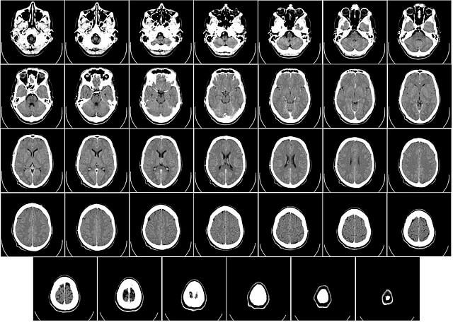 bilgisayarlı tomografi görüntüsü görseli