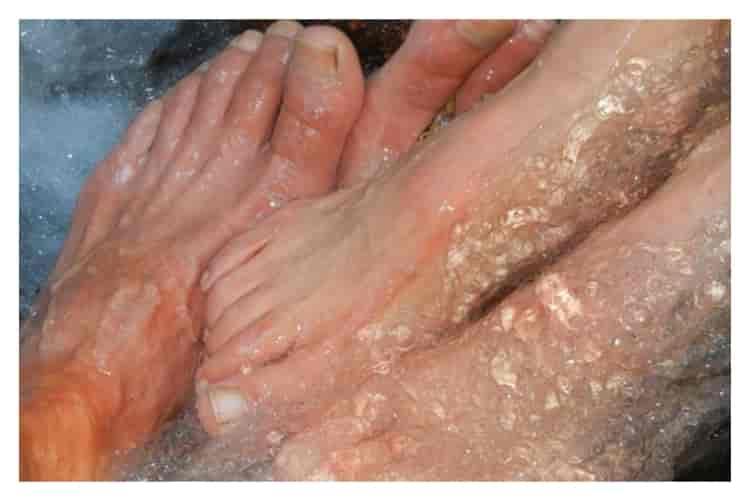 ayak-mantarı-için-ağız-çalkalama-suyu