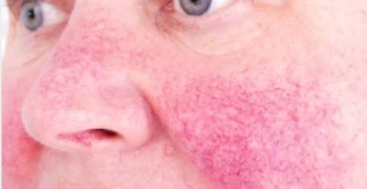 gul hastalığı nedir