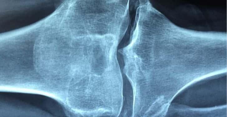 varis romatizma ve eklem ağrısına iyi gelir